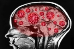 Coronavirus can cause serious brain damage